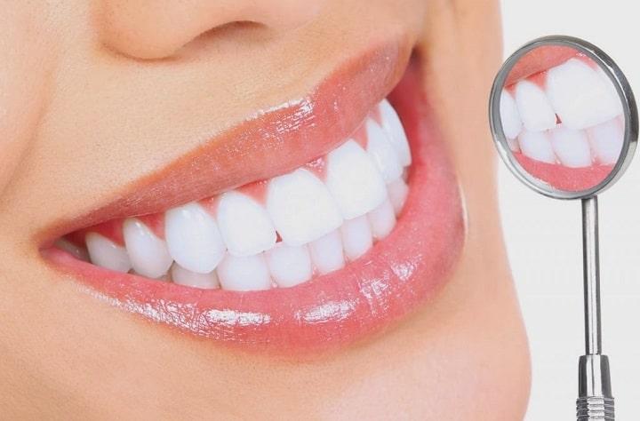 Tẩy trắng răng có an toàn hay không? – Nha Khoa Hoàn Mỹ
