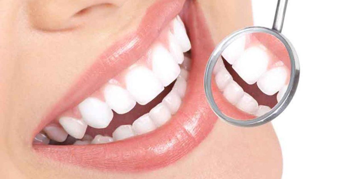 3 điều cần biết khi chọn răng sứ