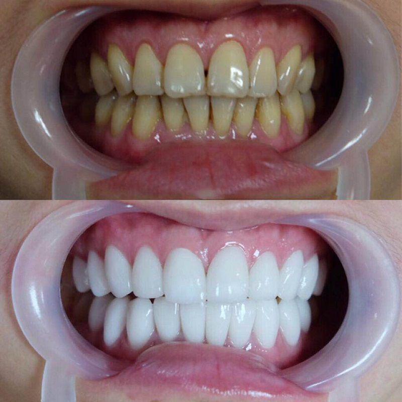 Thời điểm nào thích hợp để tẩy trắng răng? - nhakhoahoanmyhcm.over-blog.com