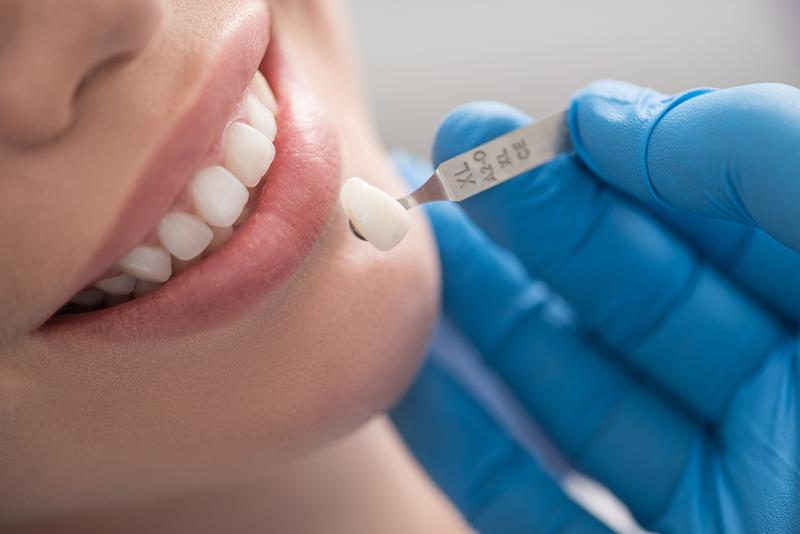 Làm răng sứ – hiệu quả thẩm mỹ và chức năng nhai cao – hàm răng sáng đẹp tự nhiên » Nhakhoahoanmyhcm