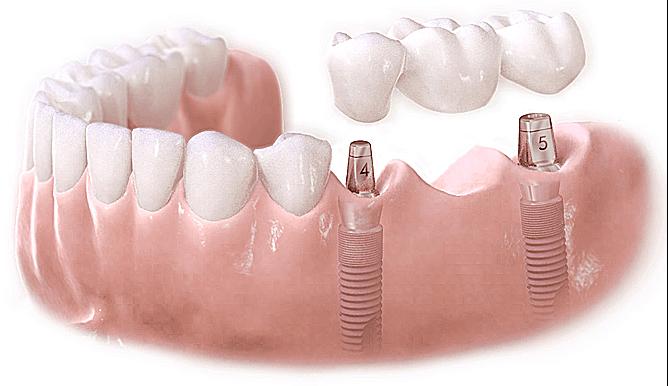 Địa chỉ cắm ghép răng ở đâu tốt ở TPHCM? – Nha Khoa Hoàn Mỹ