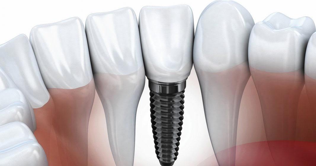 Phương pháp cắm ghép răng chất lượng hay gặp