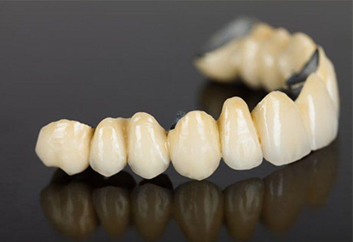 Cần chuẩn bị gì trước khi bọc sứ cho răng chất lượng? - nhakhoahoanmyhcm.over-blog.com