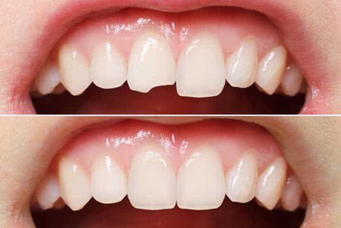 Quy trình trám răng thẩm mỹ uy tín là gì? - nhakhoahoanmyhcm.over-blog.com