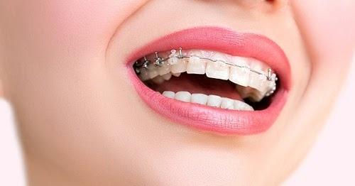Niềng răng - phương pháp thay đổi khuôn mặt