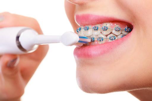 Chăm sóc răng sau khi niềng đúng cách » Nhakhoahoanmyhcm