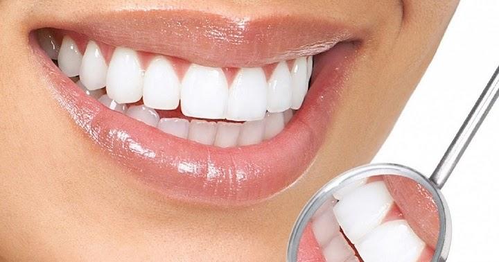 Nha khoa niềng răng mặt trong giá rẻ nhất Sài Gòn