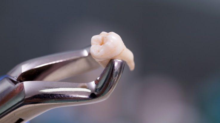 Có cần xét nghiệm máu khi nhổ răng khôn hay không? – Nha Khoa Hoàn Mỹ
