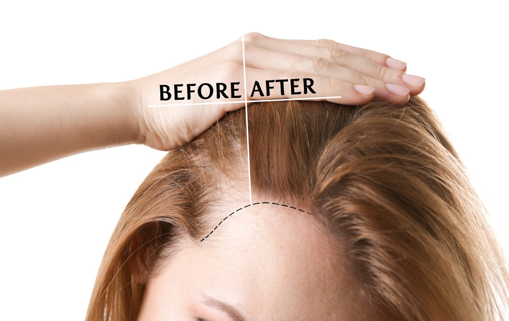 How to Prevent Hair Thinning?