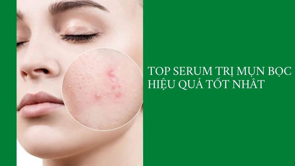 Phân tích top 5 serum trị mụn bọc hiệu quả tốt nhất chuẩn cho mọi làn da