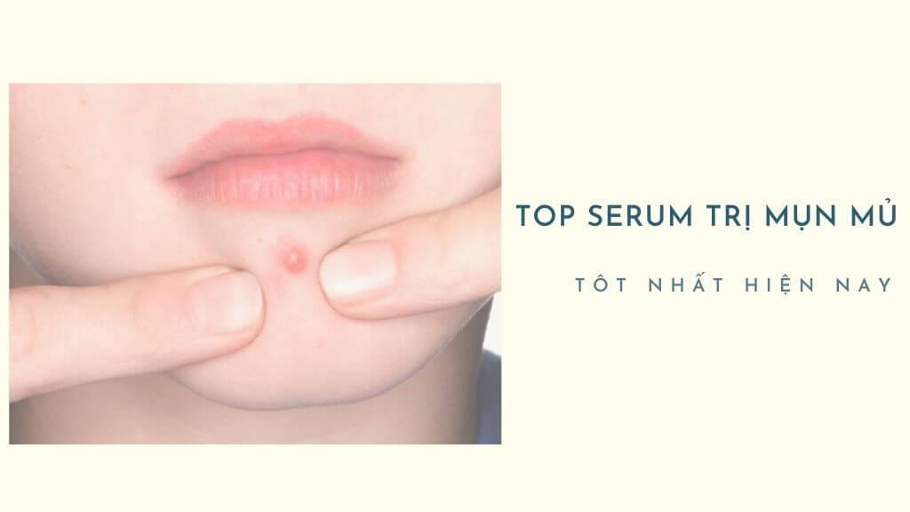 """Bái bai"" làn da đau nhói với top serum trị mụn mủ hiệu quả xoa dịu làn da"